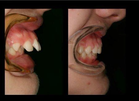 La cura dei denti  dei bambini a cura del Dott. Vincenzo Ginefra