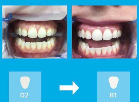 Festa della donna: l'odontoiatra Vincenzo Ginefra, promuove lo sbiancamento dei denti con lampada led