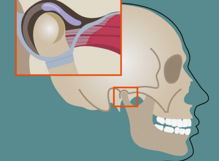 """""""Disturbi temporo – mandibolari: cause, sintomi e terapia"""" a cura del Dott. Anthony Carlino"""